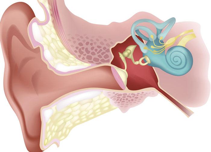 سندرم شکاف مجرای نیم دایره فوقانی یا SSCD ( Superior Semicircular Canal Dehiscence )